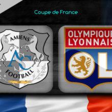 Прогноз матча Амьен – Лион 24 января